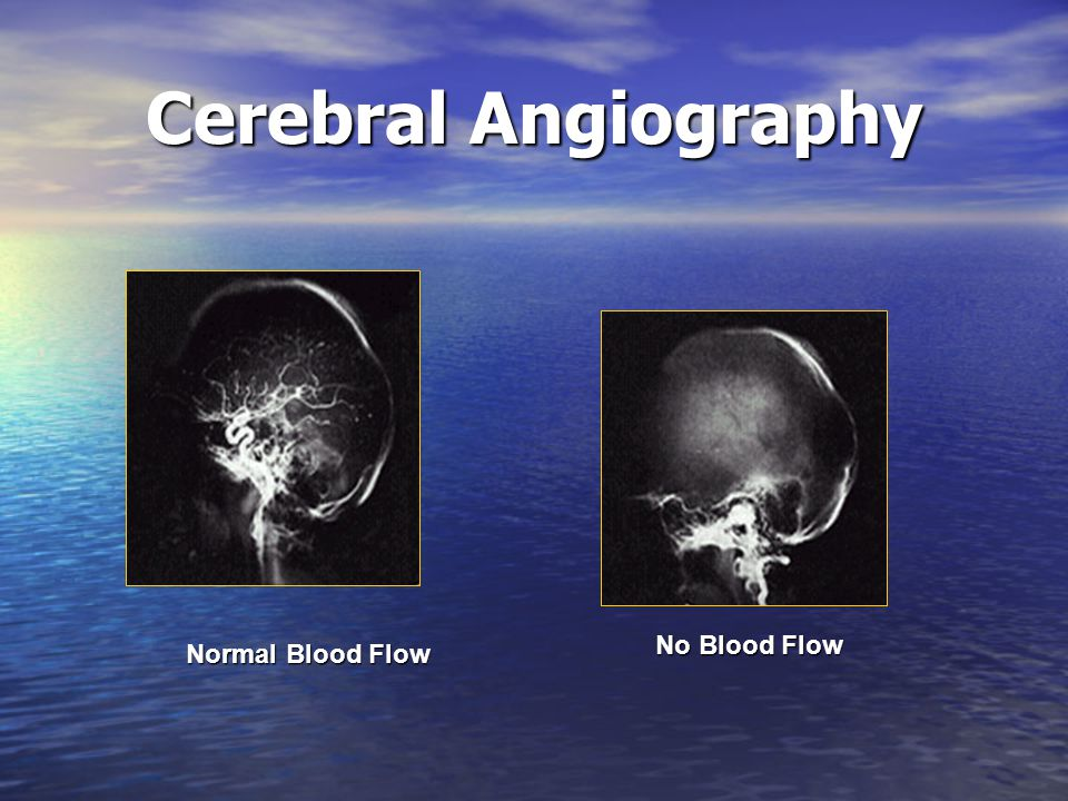 Cerebral Angiography No Blood Flow Normal Blood Flow