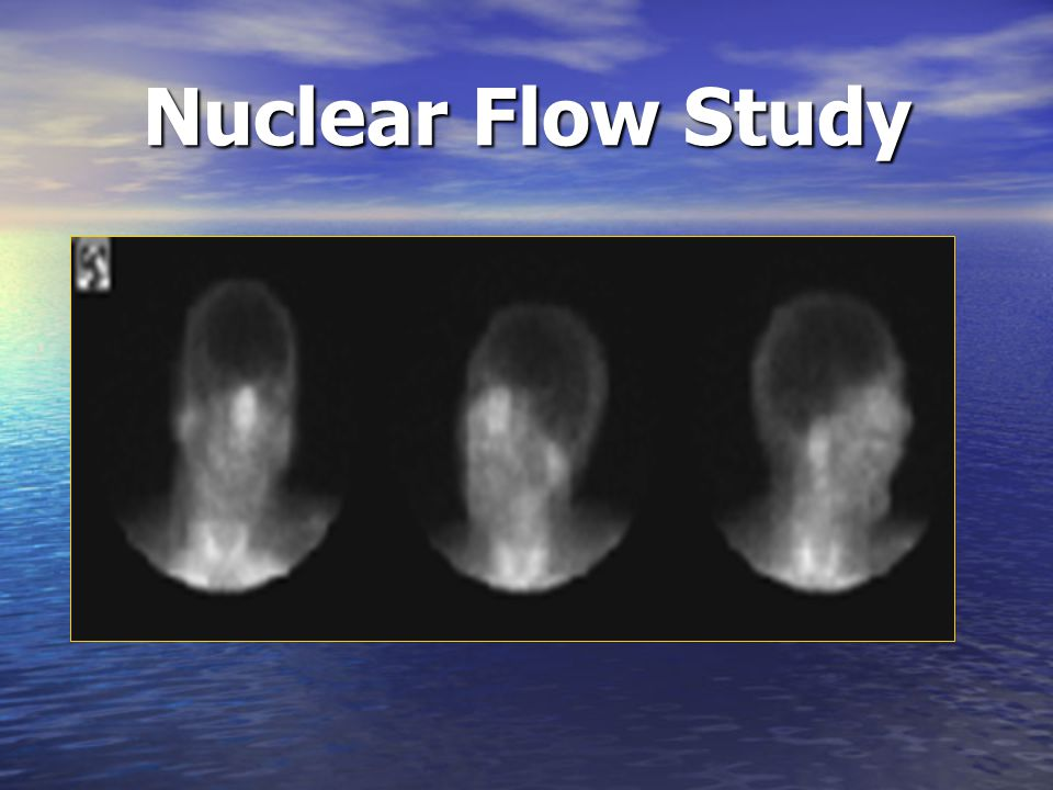 Nuclear Flow Study