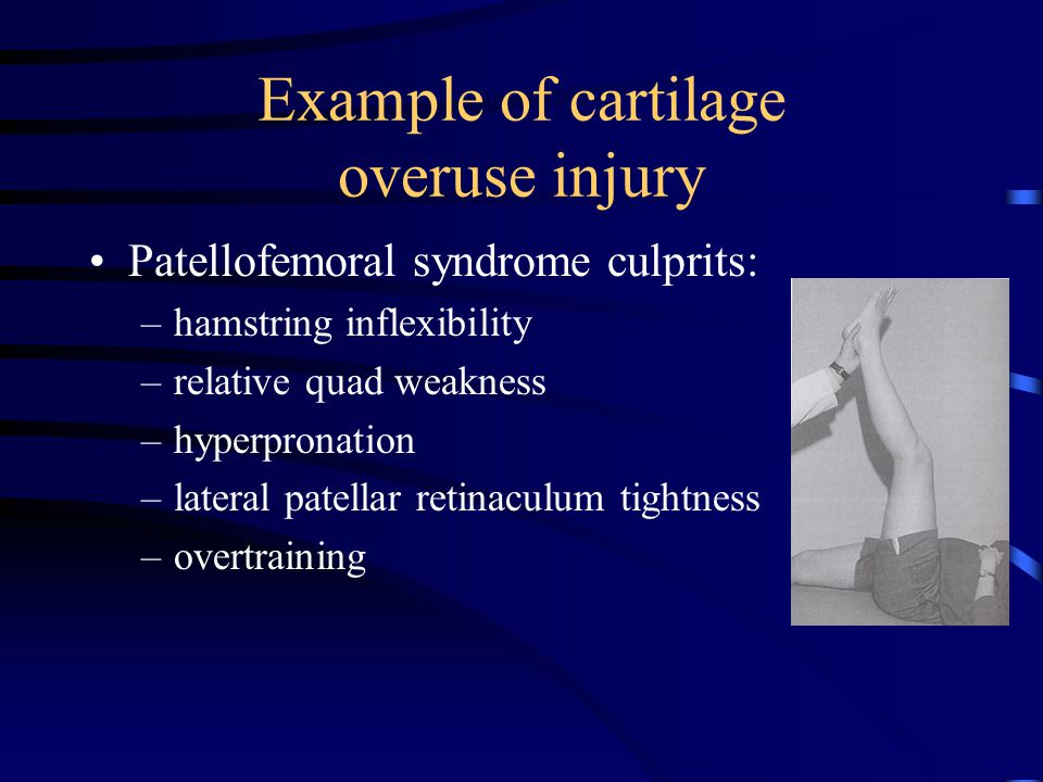Example of cartilage overuse injury