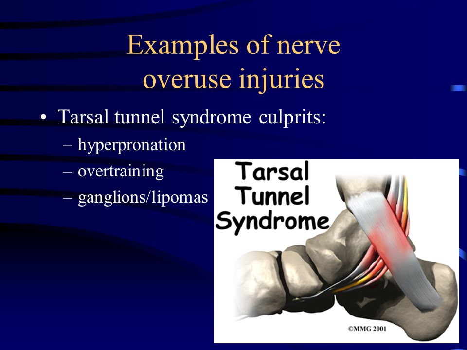 Examples of nerve overuse injuries