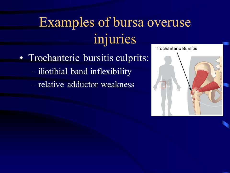 Examples of bursa overuse injuries