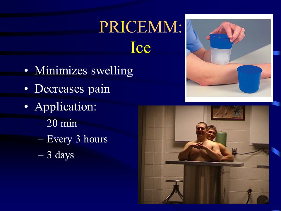 PRICEMM: Ice Minimizes swelling Decreases pain Application: 20 min