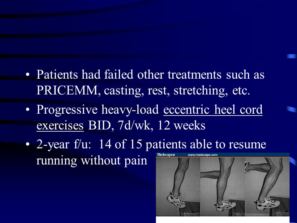 Patients had failed other treatments such as PRICEMM, casting, rest, stretching, etc.