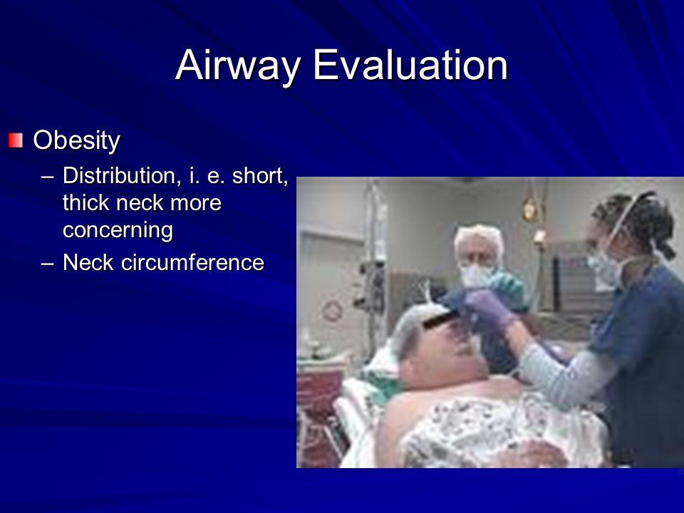 Airway Evaluation Obesity