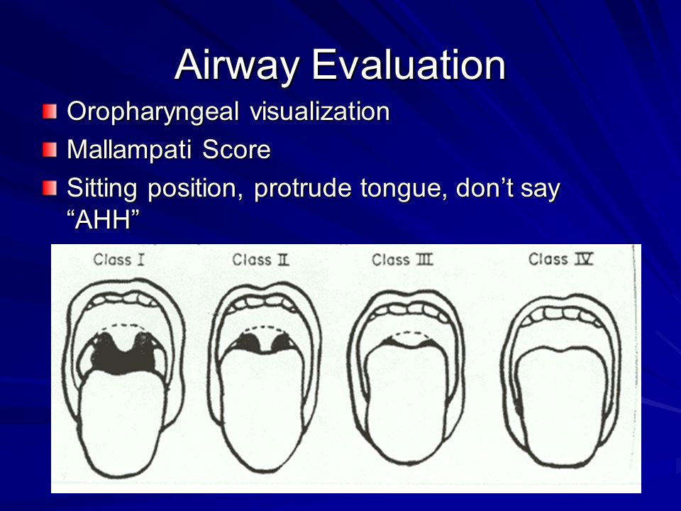Airway Evaluation Oropharyngeal visualization Mallampati Score