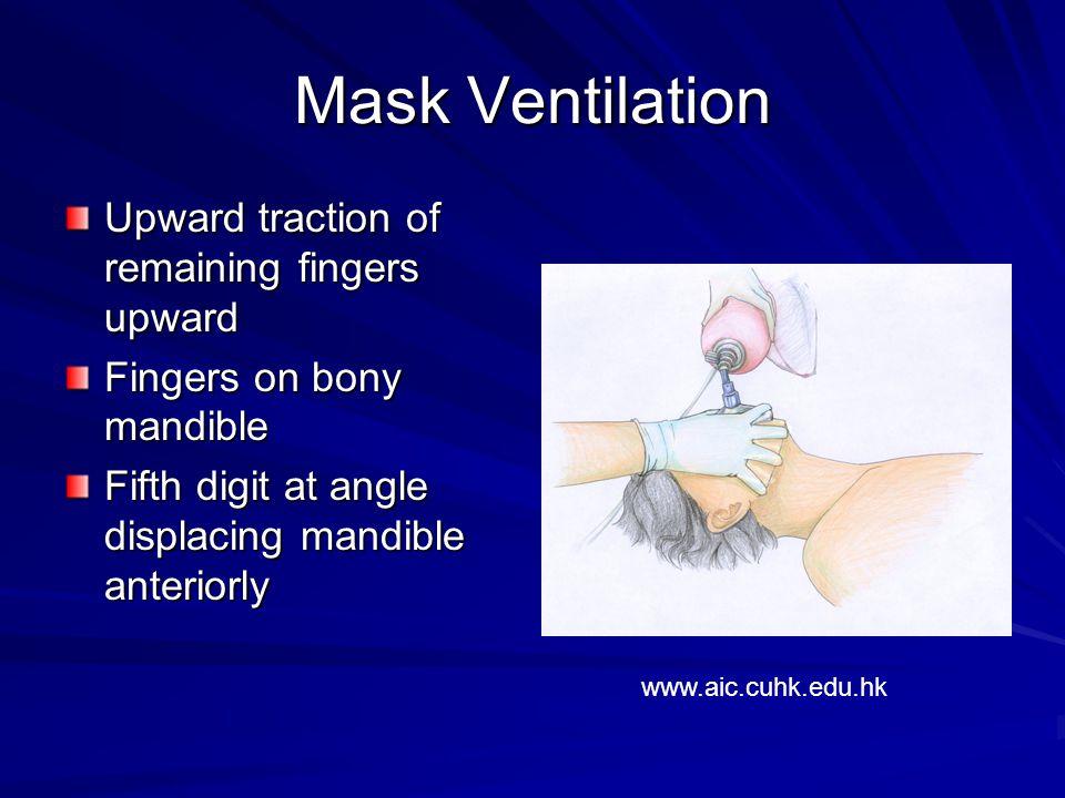 Mask Ventilation Upward traction of remaining fingers upward