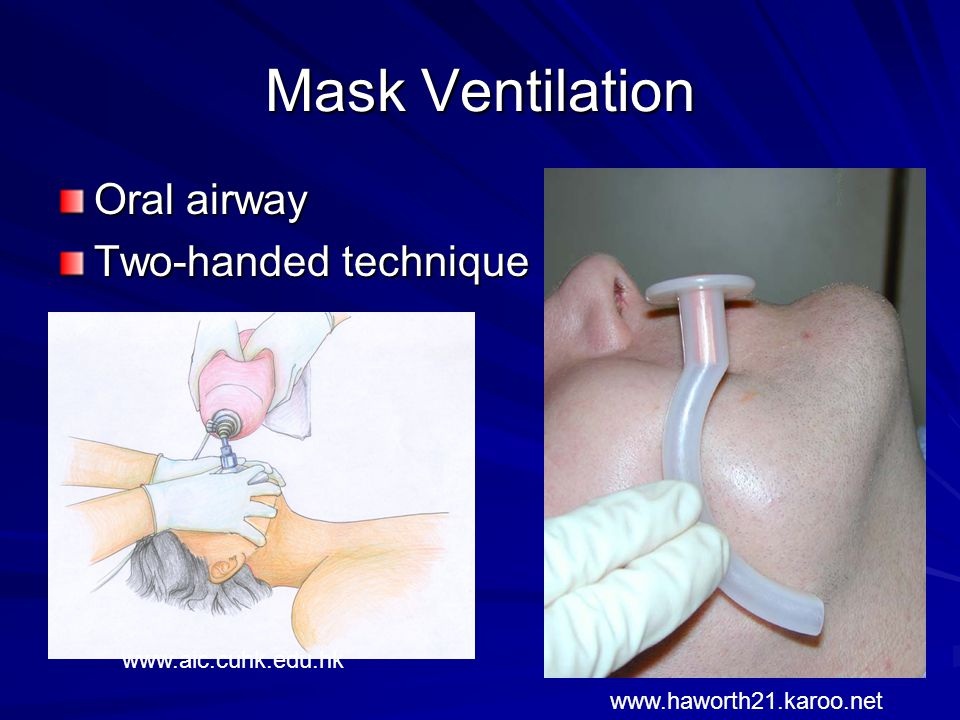 Mask Ventilation Oral airway Two-handed technique