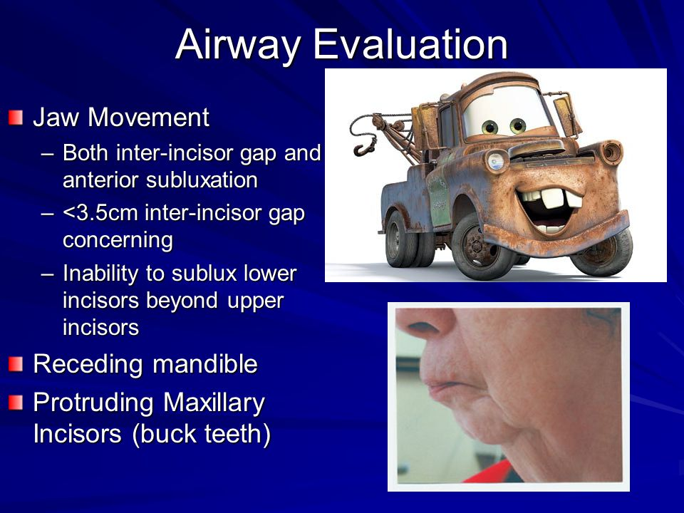 Airway Evaluation Jaw Movement Receding mandible