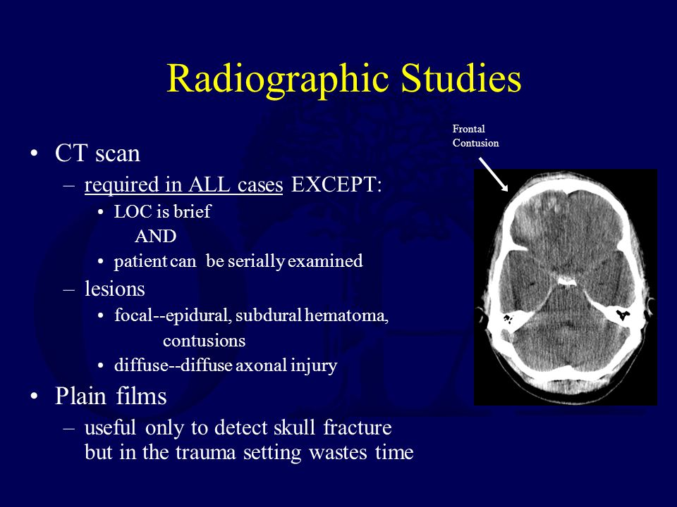 Radiographic Studies CT scan Plain films required in ALL cases EXCEPT: