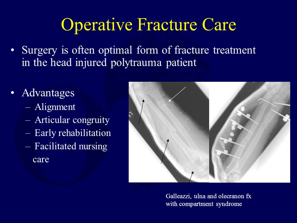 Operative Fracture Care