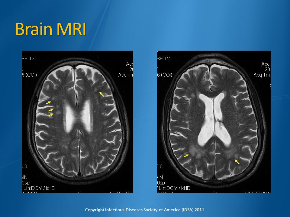 Brain MRI His brain MRI shows multiple scattered lesions concerning for septic emboli.