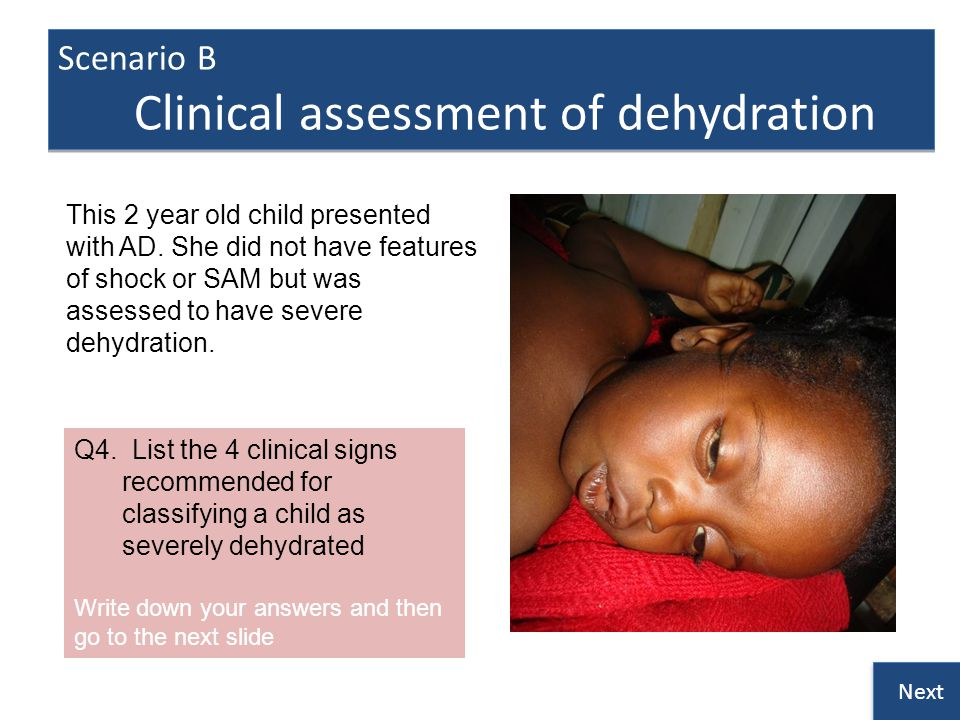 Scenario B Clinical assessment of dehydration