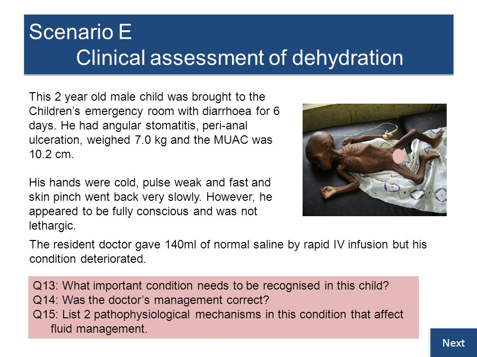 Scenario E Clinical assessment of dehydration