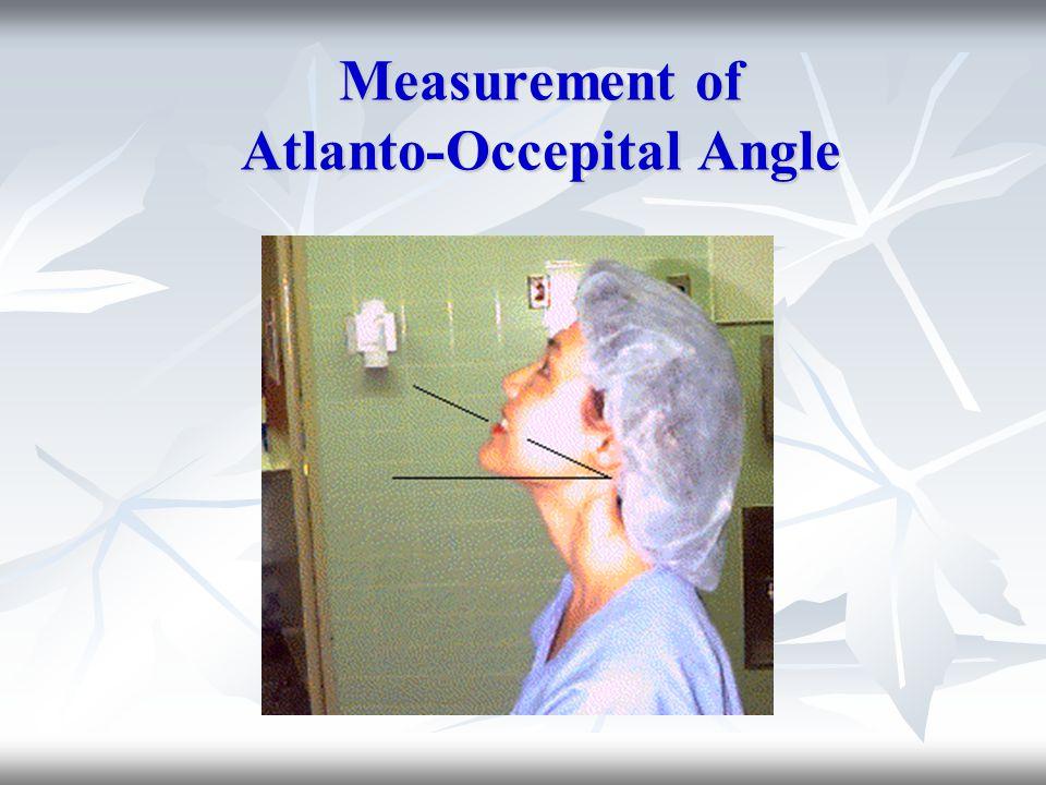 Measurement of Atlanto-Occepital Angle