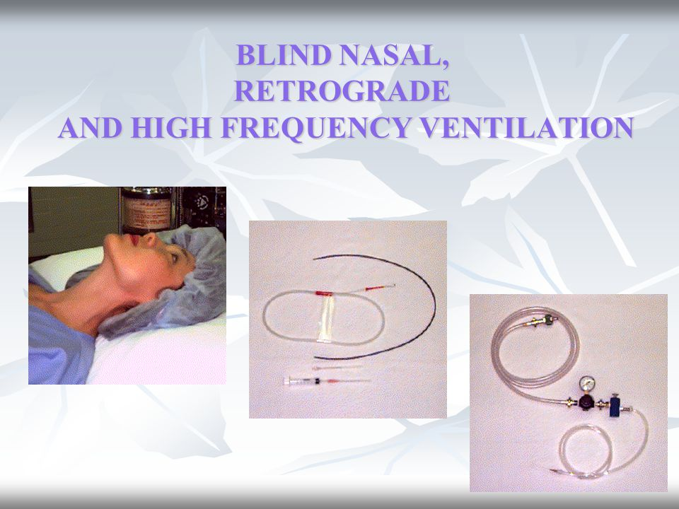 BLIND NASAL, RETROGRADE AND HIGH FREQUENCY VENTILATION