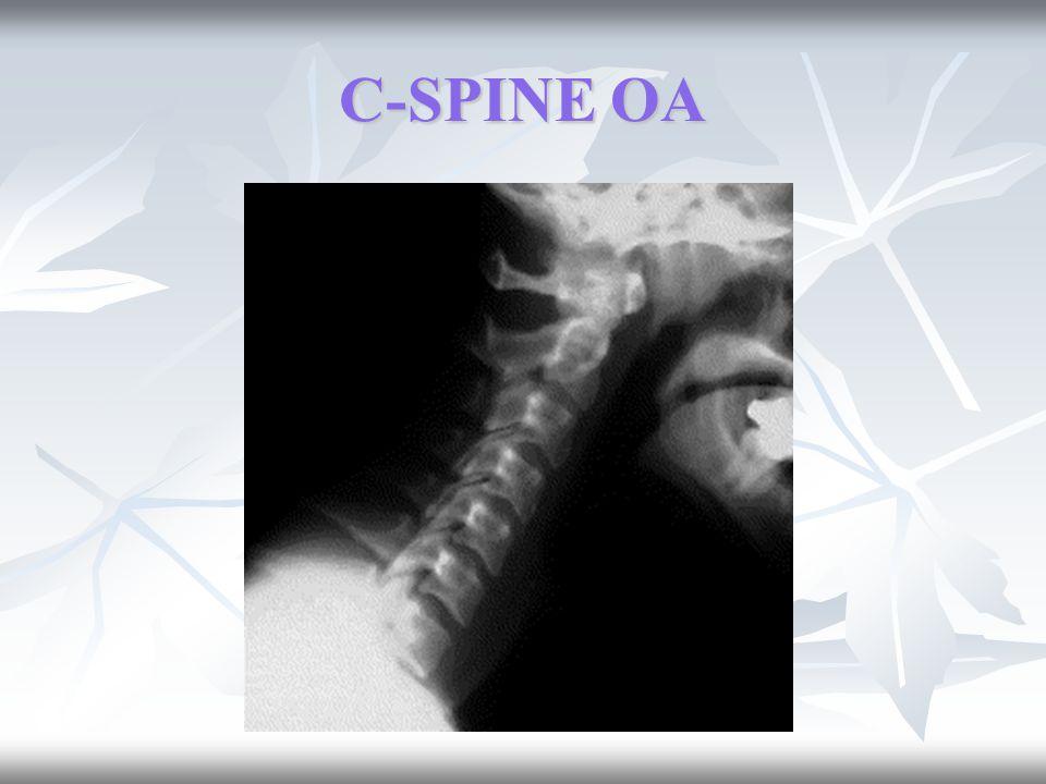 C-SPINE OA