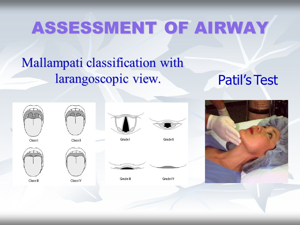 Mallampati classification with larangoscopic view.