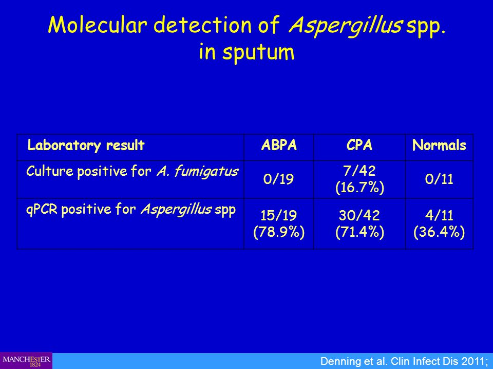 Molecular detection of Aspergillus spp. in sputum
