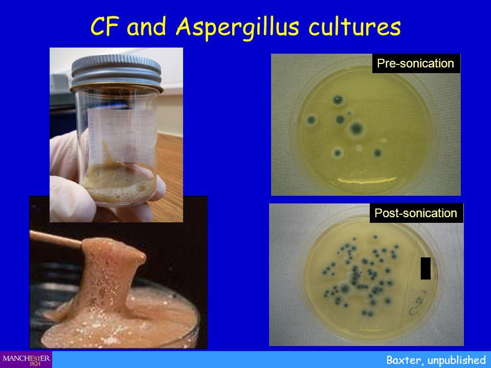 CF and Aspergillus cultures