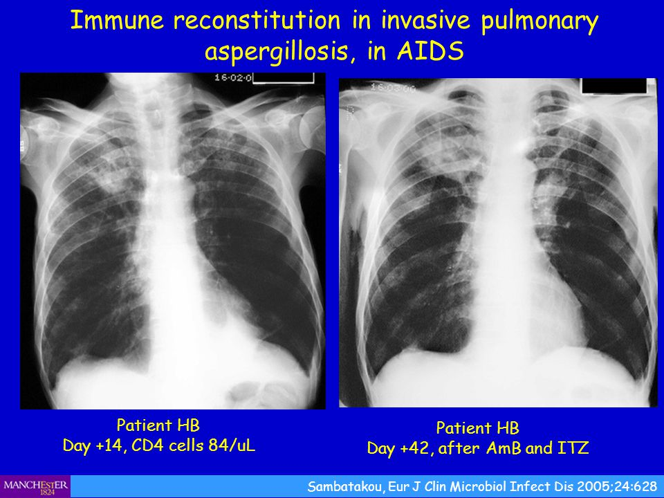 Immune reconstitution in invasive pulmonary aspergillosis, in AIDS
