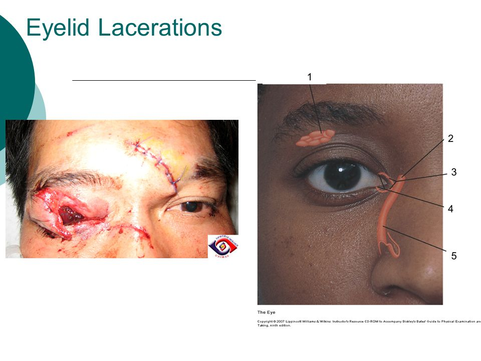 Eyelid Lacerations If skin only: close loosely with simple sutures (ROS 3-4/7)