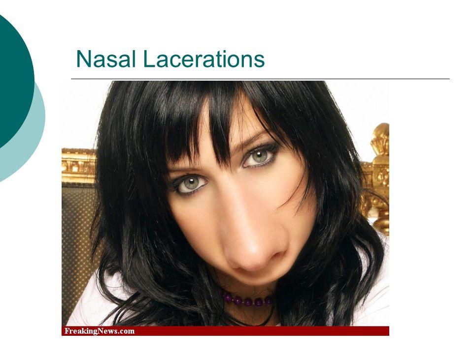 Nasal Lacerations Make sure to align the alar rim