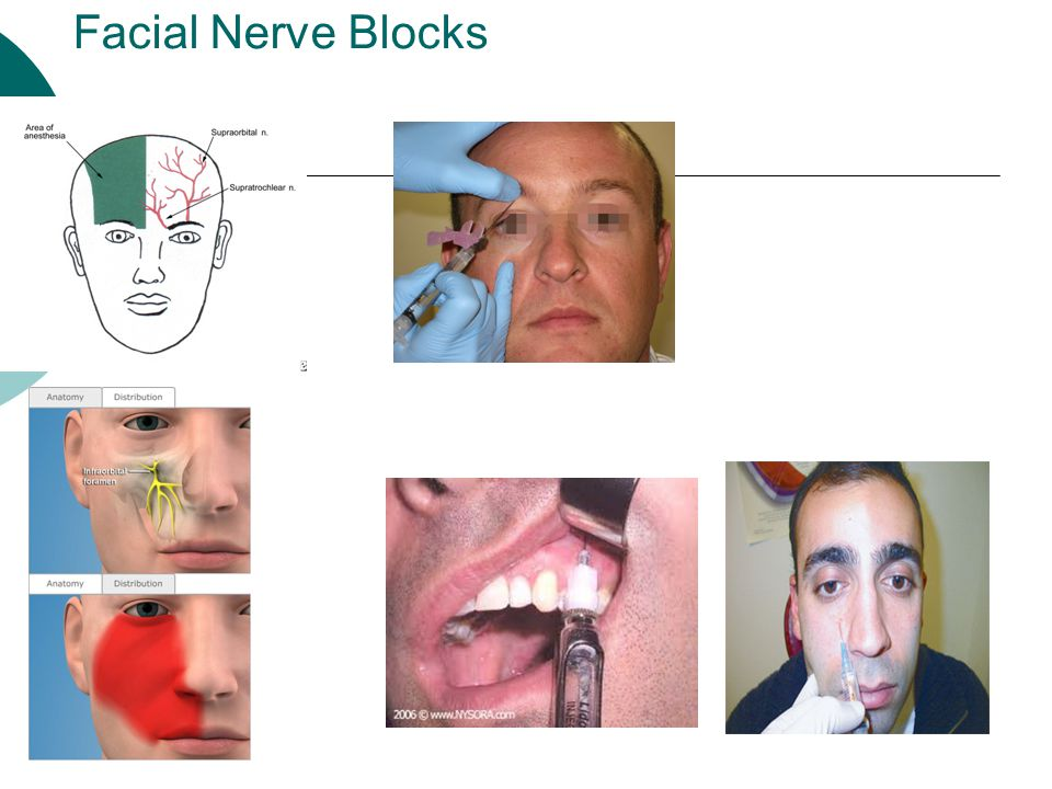 Facial Nerve Blocks