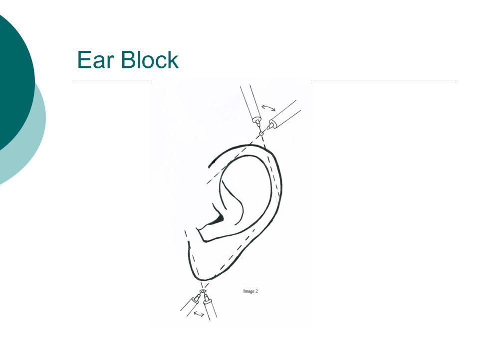 Ear Block May need wedge excision of pinna; leave overhang of skin; 5mm of cartilage can be removed without significant deformity.