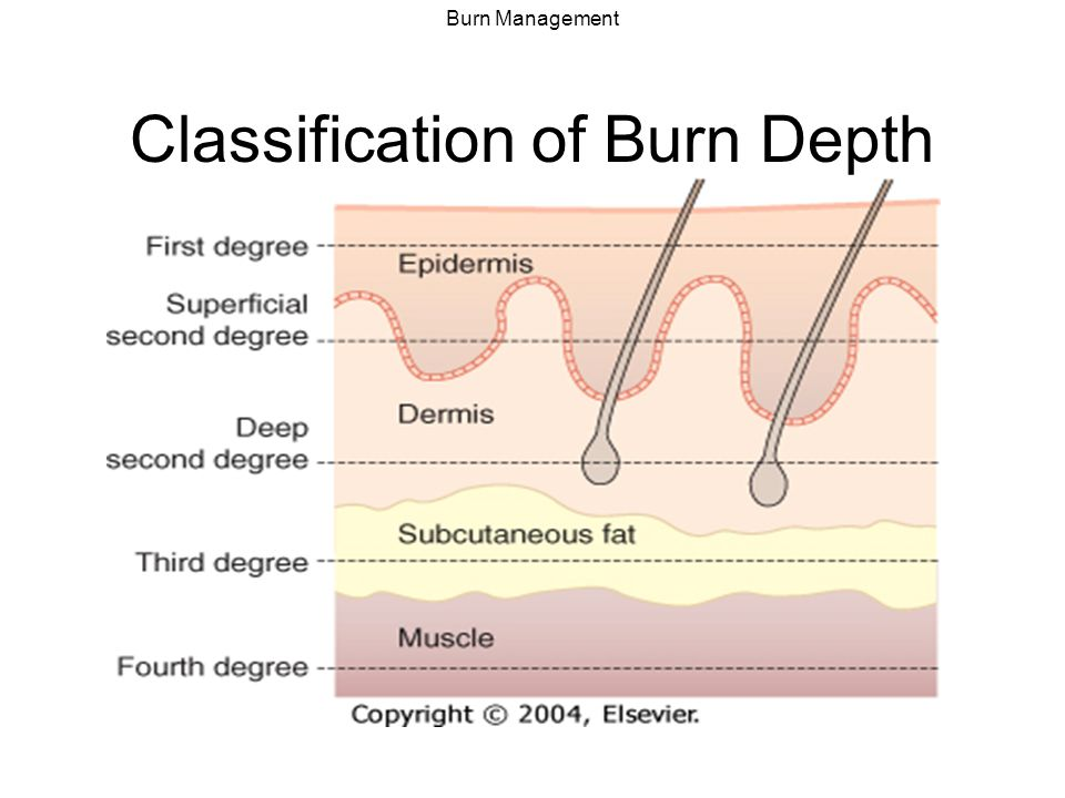 Classification of Burn Depth