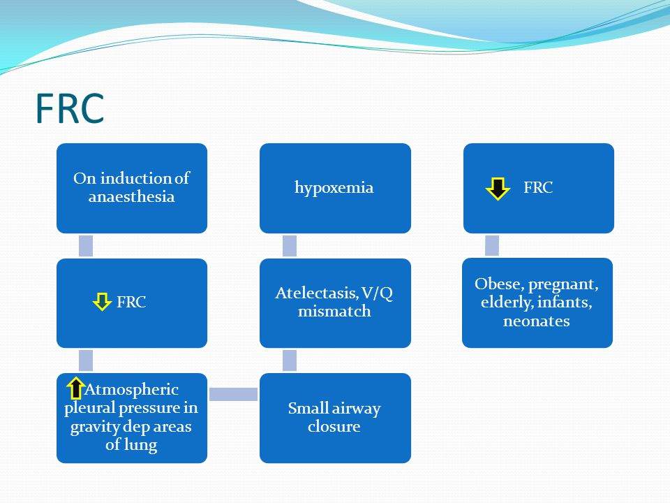 FRC On induction of anaesthesia FRC