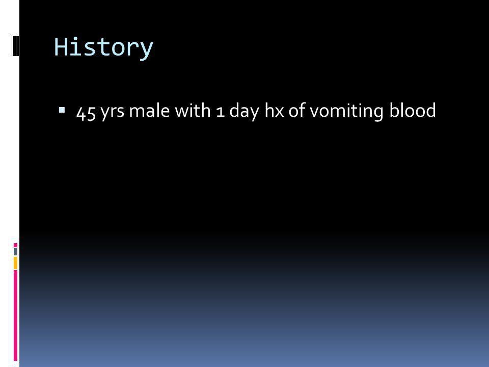 History 45 yrs male with 1 day hx of vomiting blood