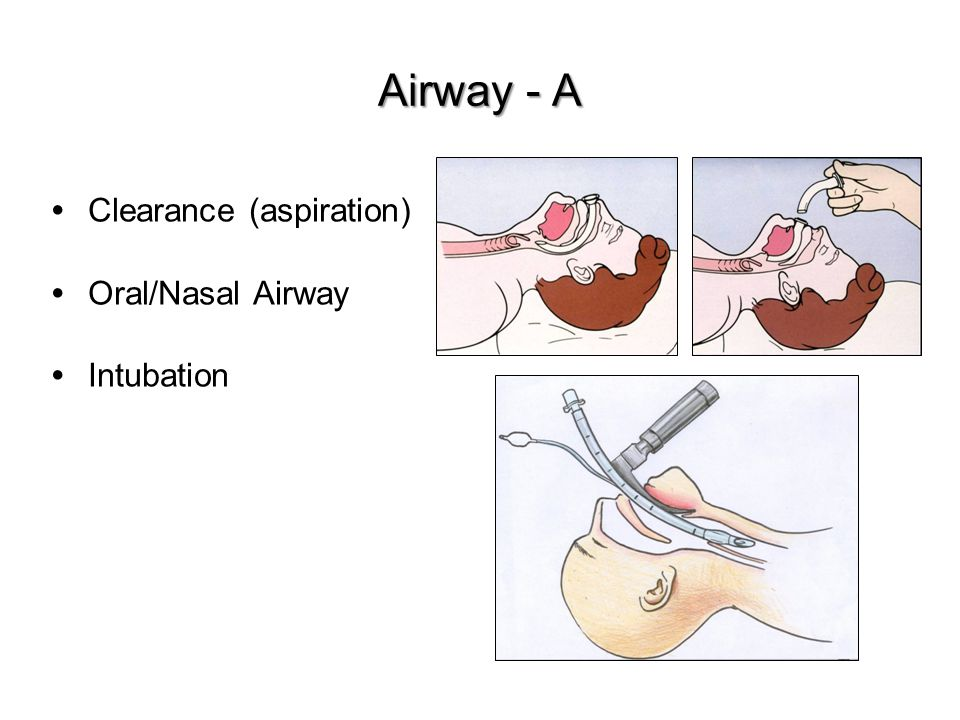 Airway - A Clearance (aspiration) Oral/Nasal Airway Intubation