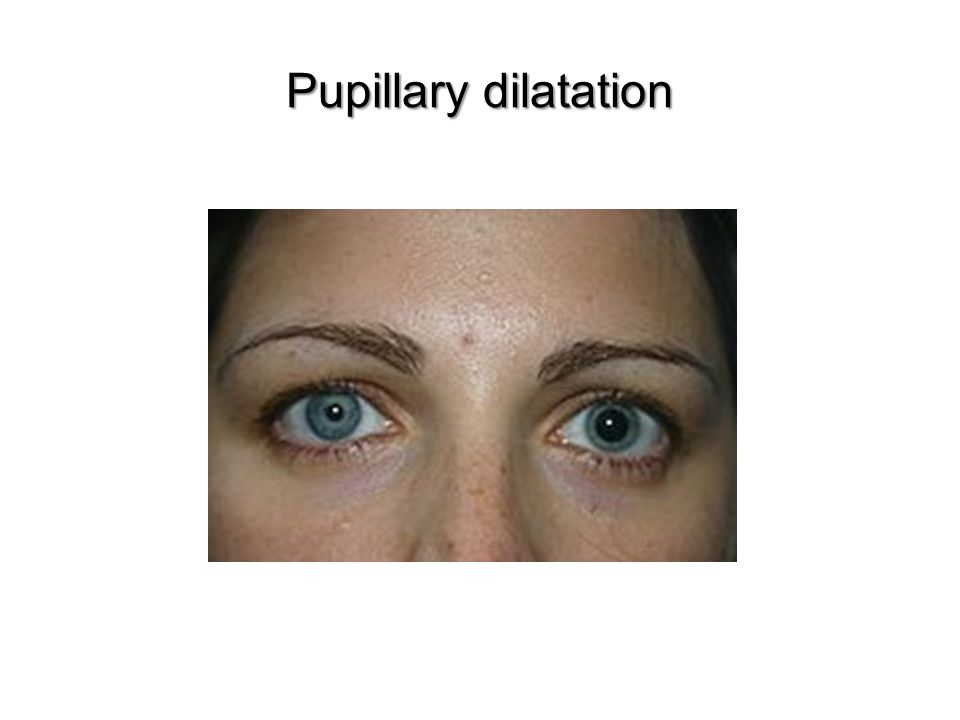 Pupillary dilatation