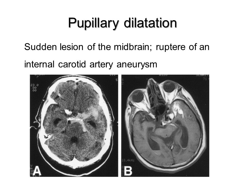 Pupillary dilatation Sudden lesion of the midbrain; ruptere of an internal carotid artery aneurysm