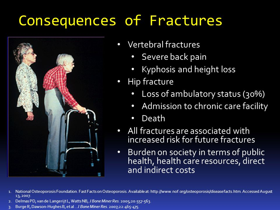 Consequences of Fractures