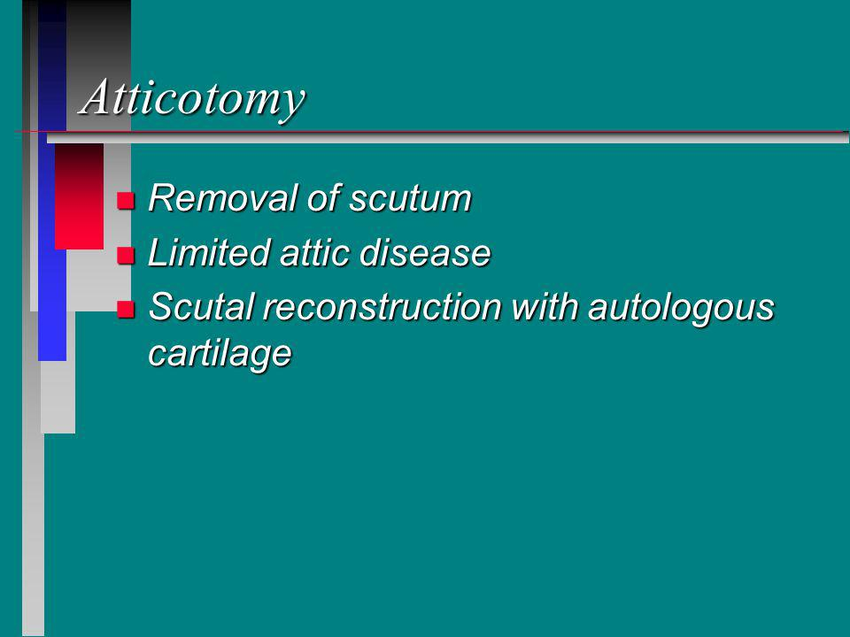 Atticotomy Removal of scutum Limited attic disease