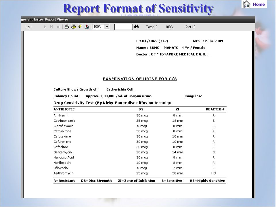 Report Format of Sensitivity