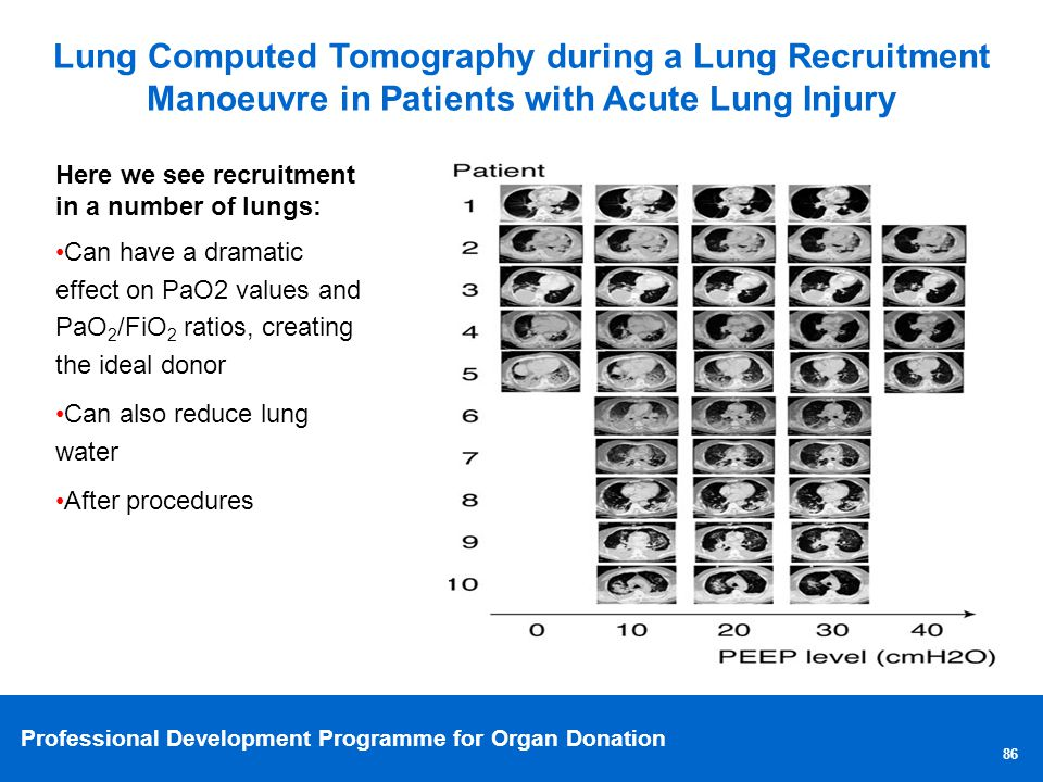 Lung Computed Tomography during a Lung Recruitment Manoeuvre in Patients with Acute Lung Injury