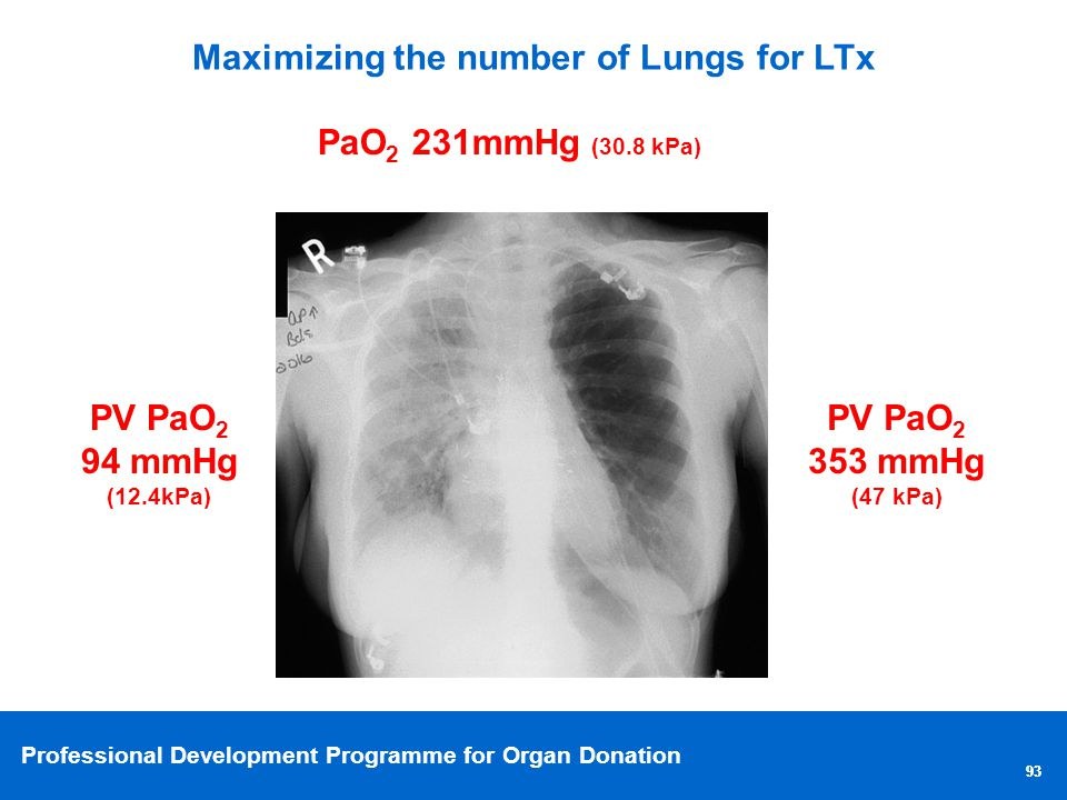 Maximizing the number of Lungs for LTx