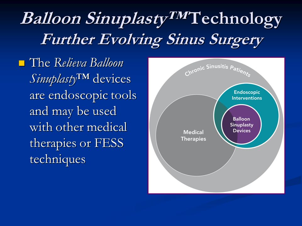 Balloon Sinuplasty™ Technology Further Evolving Sinus Surgery