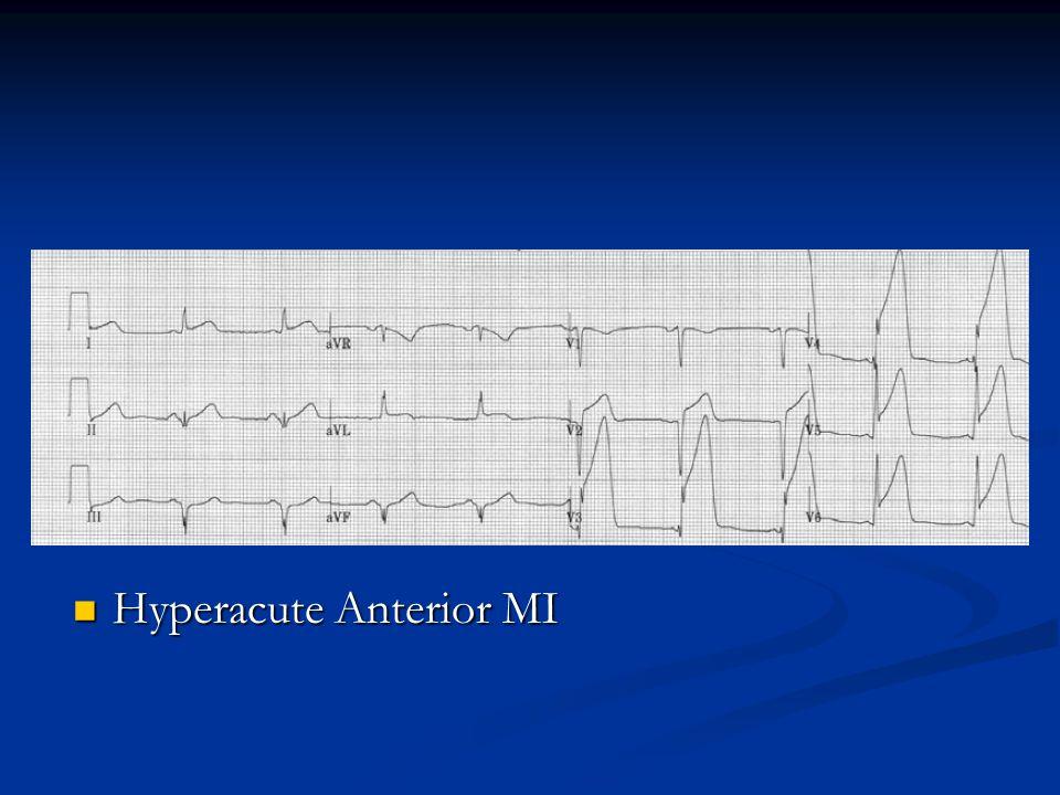 Hyperacute Anterior MI