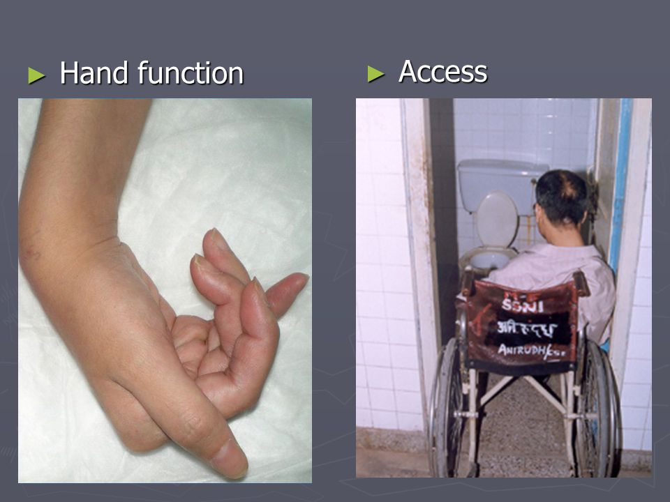 Hand function Access