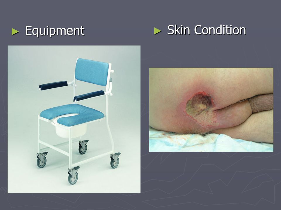 Equipment Skin Condition