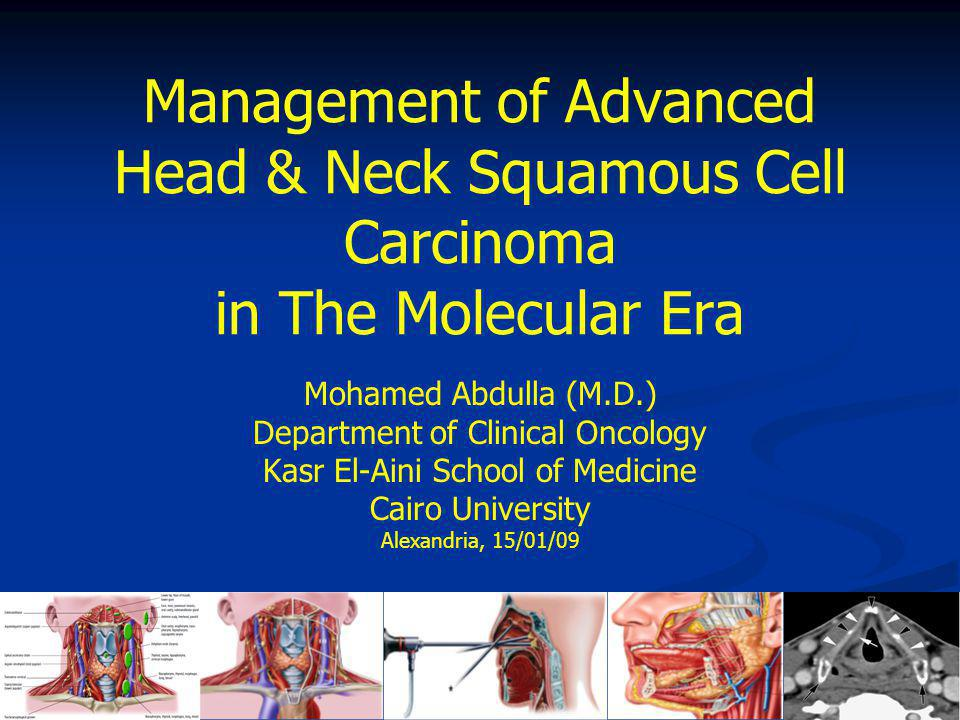 Management of Advanced Head & Neck Squamous Cell Carcinoma in The Molecular Era