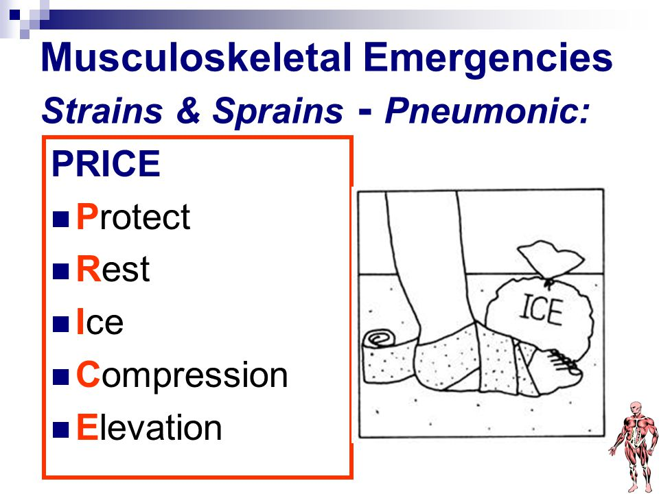 Musculoskeletal Emergencies Strains & Sprains - Pneumonic: