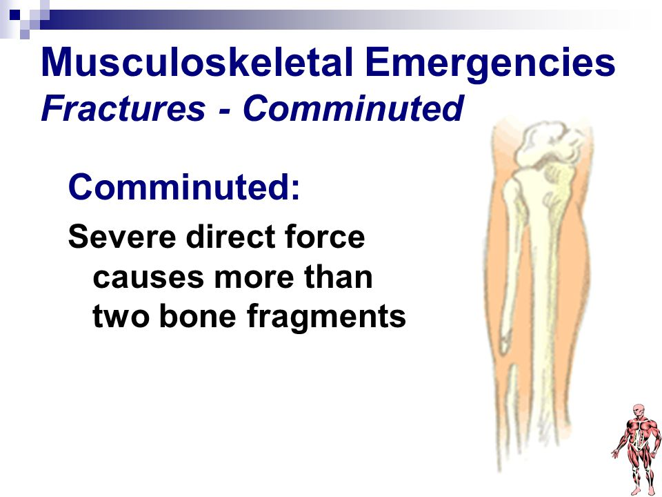 Musculoskeletal Emergencies Fractures - Comminuted