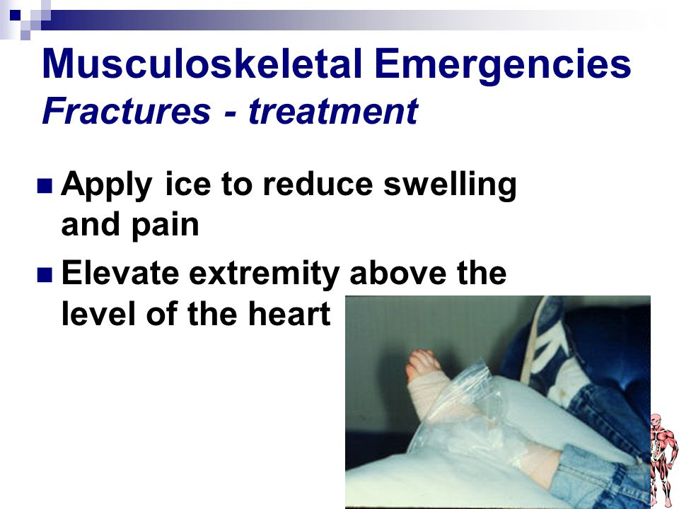 Musculoskeletal Emergencies Fractures - treatment