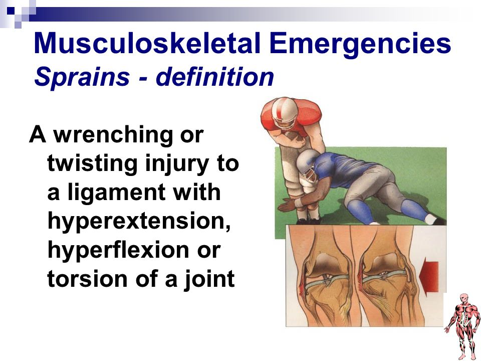Musculoskeletal Emergencies Sprains - definition