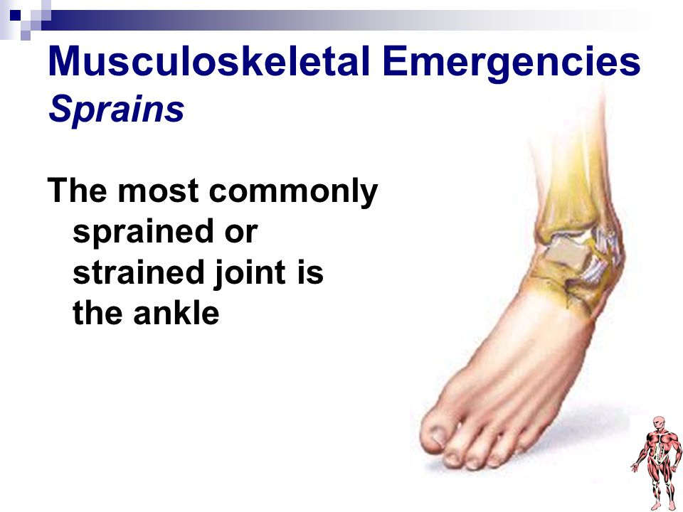 Musculoskeletal Emergencies Sprains