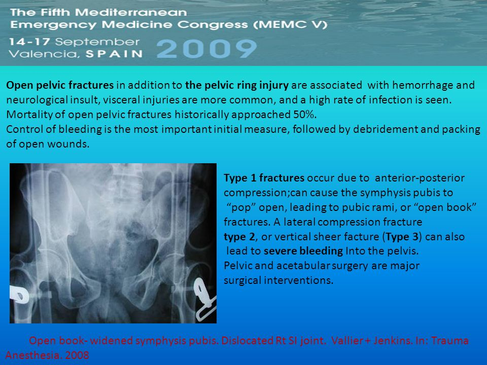 Open pelvic fractures in addition to the pelvic ring injury are associated with hemorrhage and neurological insult, visceral injuries are more common, and a high rate of infection is seen.